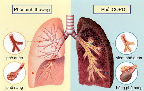 Phương thuốc hay phòng trị bệnh hô hấp mạn tính